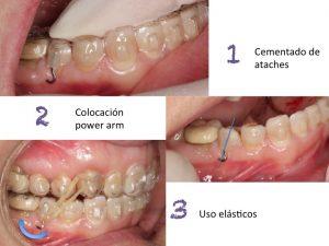 Clínica Dental Campoy & Álvarez-Gómez, cementar power arm, ataches