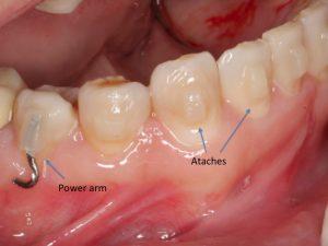 Clínica Dental Campoy & Álvarez-Gómez, ataches, power arm