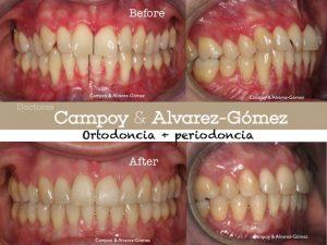 ortodoncia, periodoncia, enfermedad periodontal, injerto conectivo, Campoy & Alvarez-Gómez