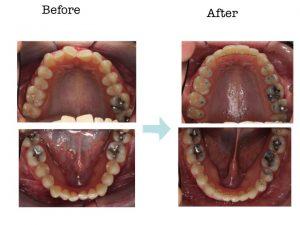 ortodoncia, extracción asimétrica, campoy &alvarez-gomez