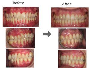 ortodoncia, paciente periodontal, injerto conectivo, campoy & alvarez-gomez