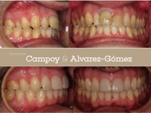 carilla de composite, ortodoncia