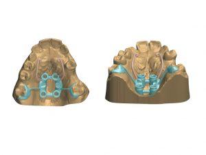 Campoy & Alvarez-Gómez. Ortodoncia Murcia. ortodoncia invisible