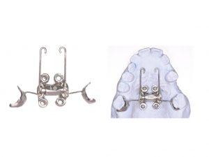 ortodoncia Murcia, ortodoncia estética, disyunción, microtornillos, tads