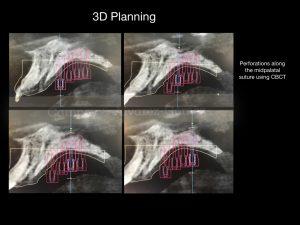 corticopuncture, MARPE, Power expander, clinica ortodoncia murcia