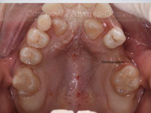 corticopunction, corticopunción, C&AG splint, férula guiada, ortodoncia Murcia