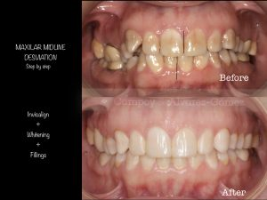 Distalización con invisalign, clinica ortodoncia Murcia, Invisalign Murcia, Ortodoncia invisible Murcia, Distalization