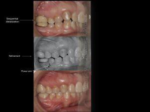 Invisalign Murcia, Campoy & Alvarez-Gómez, Clinica ortodoncia Murcia,Distalización en clases II con invisalign, Invisalign Distalization